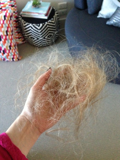 Hair Loss 4